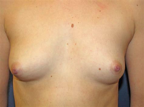 breast growing transsexual jpg 2272x1704