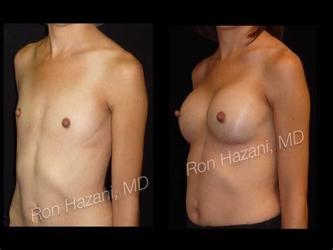 Breast implants videos realself jpg 1024x768
